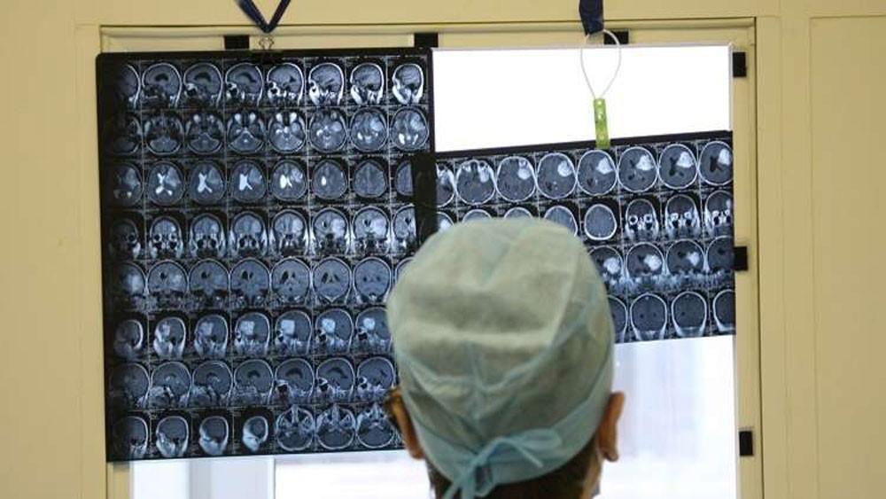 جراحون هنود ينجحون في إزالة أكبر ورم دماغي