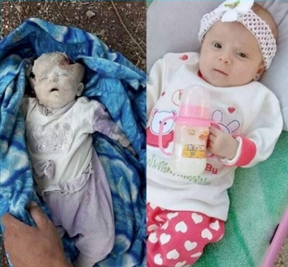 صورة رضيعة سورية قتلوها في إدلب تهزّ مواقع التواصل