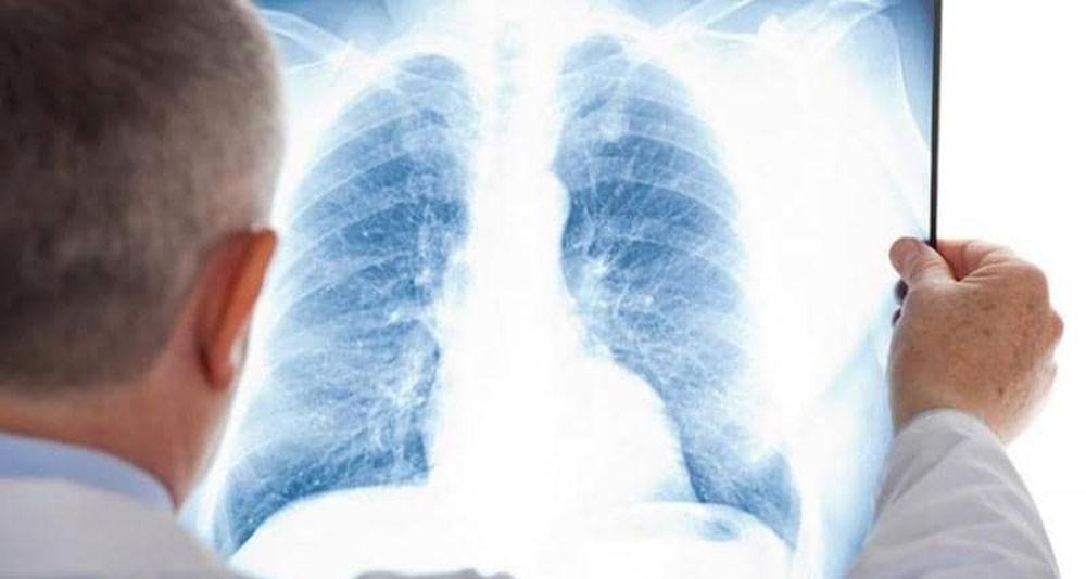 """علماء يتوصلون لـ""""علاج محتمل"""" لسرطان الرئة"""