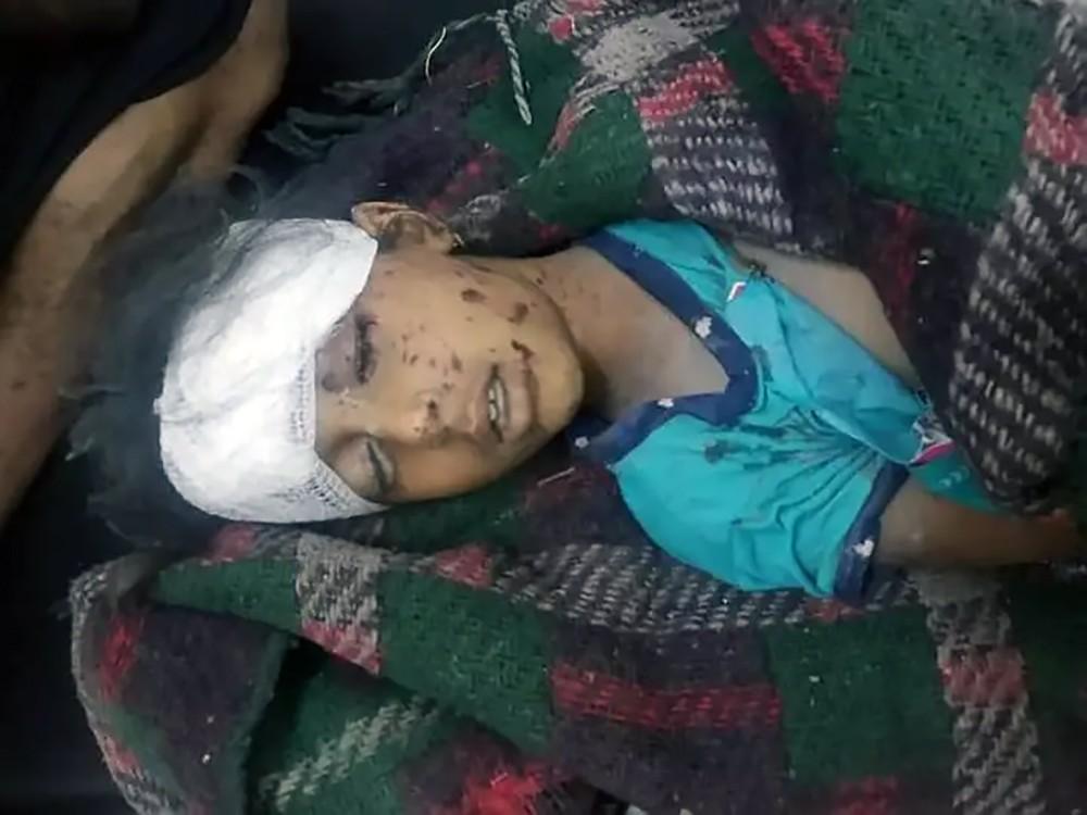 صور مؤلمة.. قصف حوثي يحصد مزيدا من أطفال اليمن