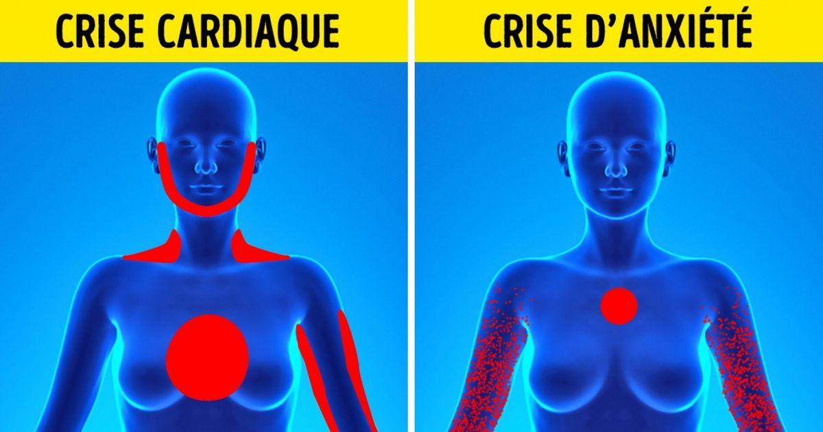 Connaître une crise d'angoisse à une crise cardiaque