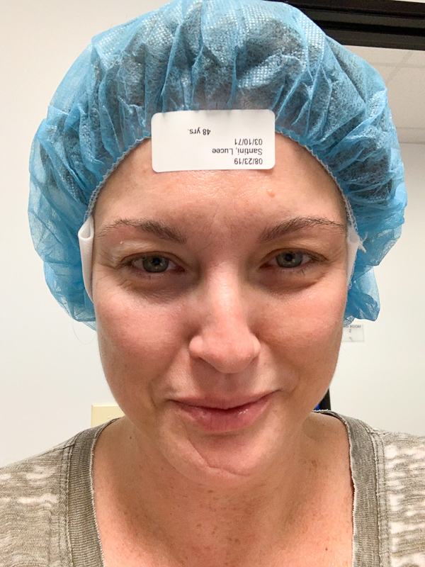 woman with hair cap getting ready for surgery