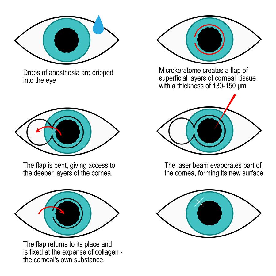 inforgraphic on lasik surgery
