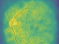 Saliency map generated by the model in a true-positive case with eGFR = 50 mL/min/1.73 m2. Source: Image created by the authors; Copyright: The Authors; URL: http://medinform.jmir.org/2020/11/e23472/; License: Creative Commons Attribution (CC-BY).