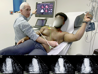 Stress echocardiography in action (top); contrast enhanced echo images (bottom). Source: Image created by the Authors; Copyright: The Authors; URL: http://cardio.jmir.org/2020/1/e16975/; License: Creative Commons Attribution (CC-BY).
