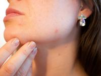 Source: Pixabay; Copyright: Kjerstin_Michaela; URL: https://pixabay.com/photos/acne-pores-skin-pimple-female-1606765/; License: Licensed by JMIR.