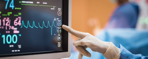 EKG Technician: What Can I Expect in This Job?