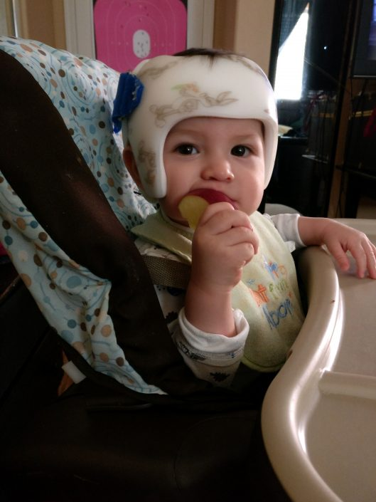 cranial orthotic, baby helmet, baby band, cranial helmet, plagiocephaly, flat head syndrome, baby, infant, orthotic, medical, neurosurgeon, specialist, pediatric, pediatrician, doctor, personal, experience, first time, parenthood, babyhood, hanger, clinic, follow up, check up, scan, measurement, adorable