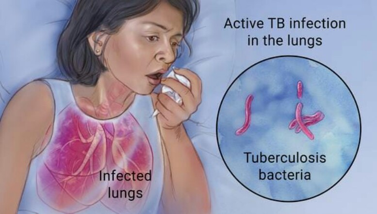 TB-FREE STATUS BY 2025
