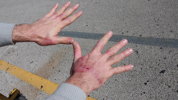 A month after the incident, Espenlaub's hands were healing nicely. He was back at the top of the lap charts, too.