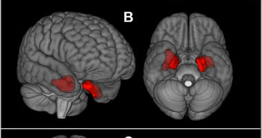 This image provided by The New England Journal of Medicine in April 2019 shows an illustration based on brain scans from former NFL players.