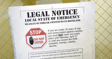 March 27, 2019 file photo shows a sign explaining the local state of emergency because of a measles outbreak at the Rockland County Health Department in Pomona, N.Y.