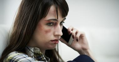 A woman with bruises on her face holds a cell phone near her ear