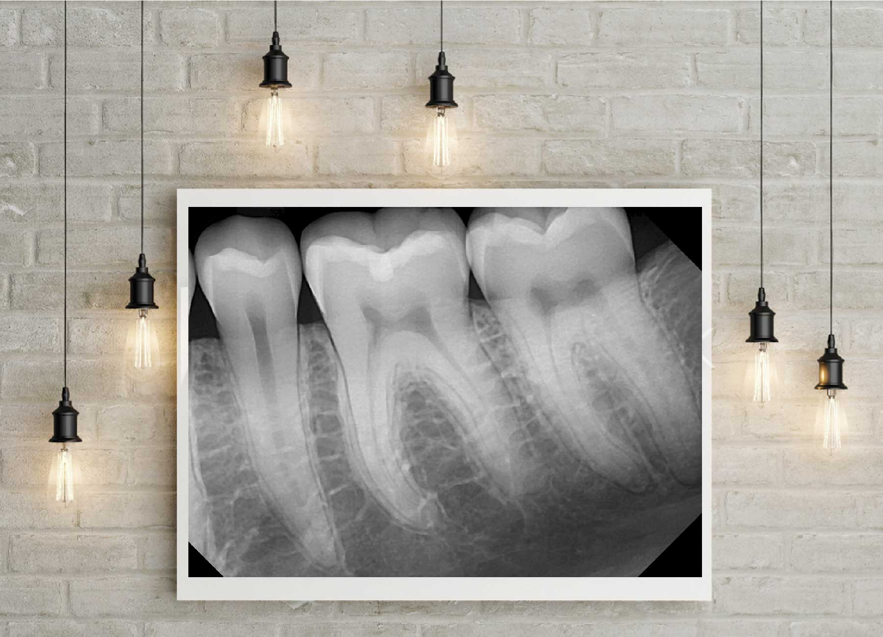 Image about digital dental x-rays