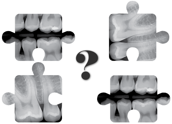 Image of Dental Sensor X-Rays in Abstract puzzle