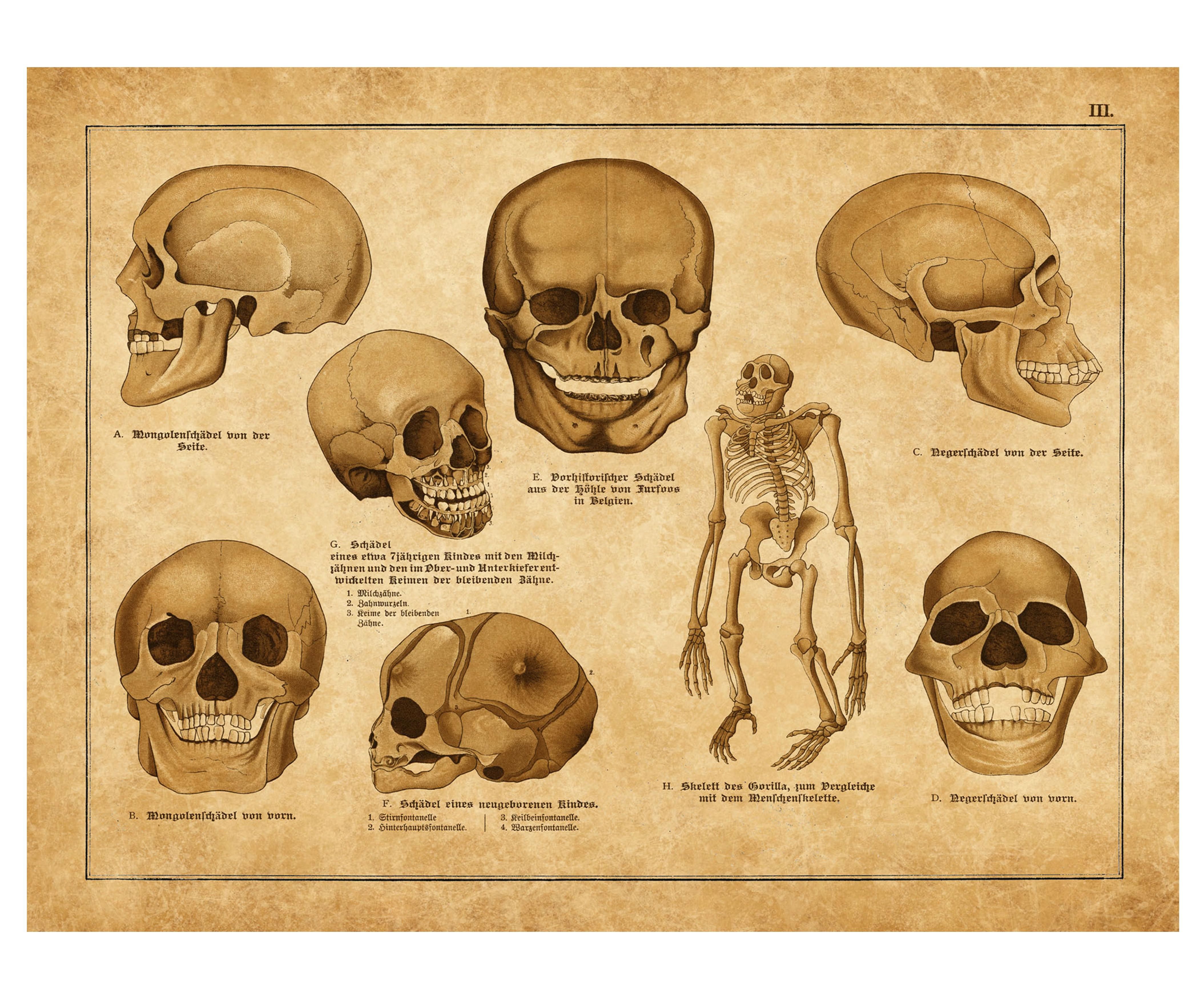 Vintage Anatomy Print Of Skulls Anatomical Illustration Unframed