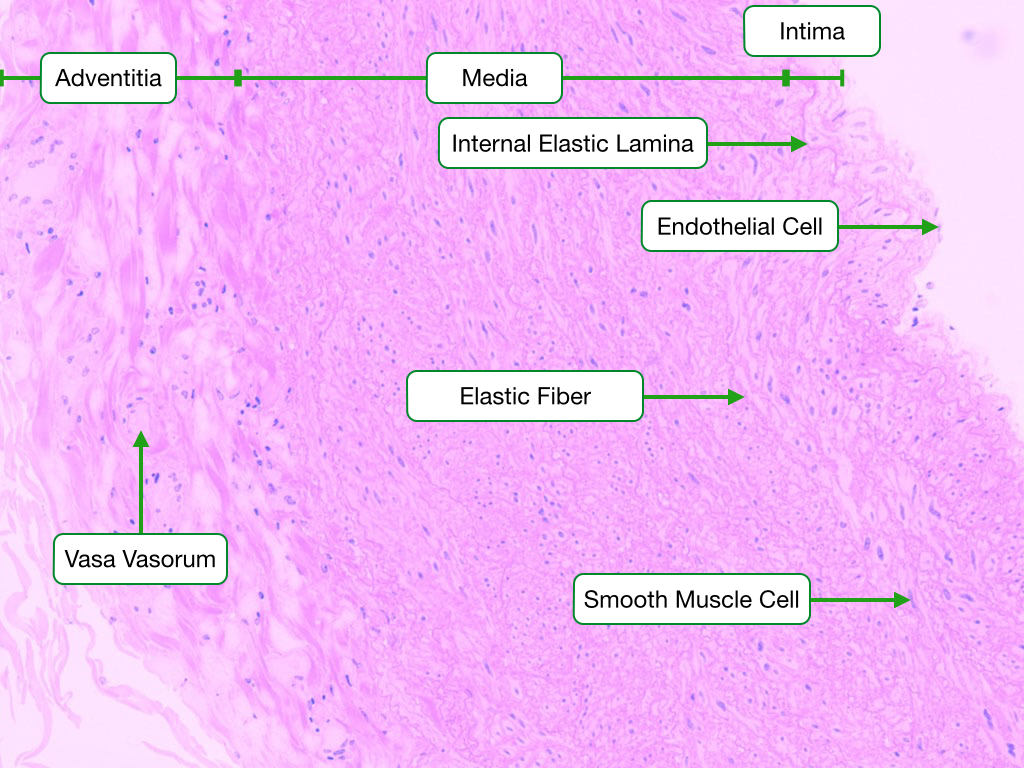 Elastic Artery Wall