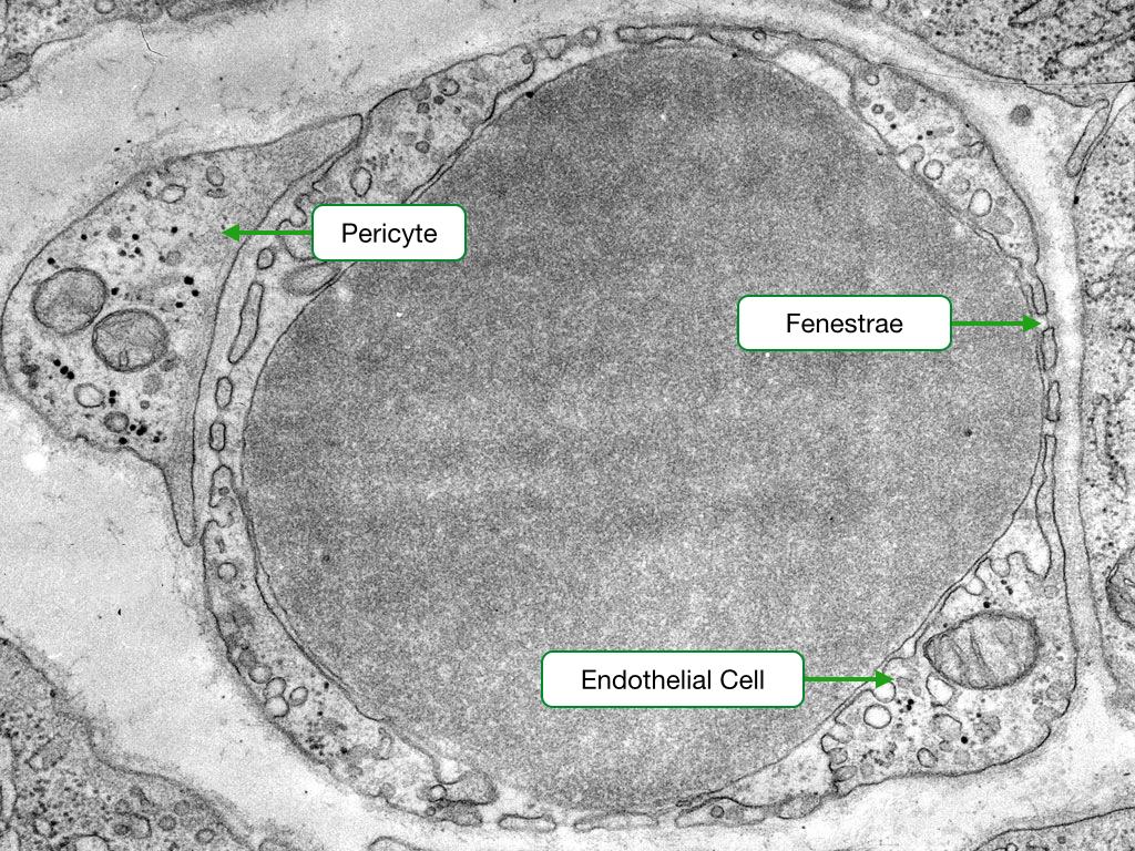 Fenestrated Capillary