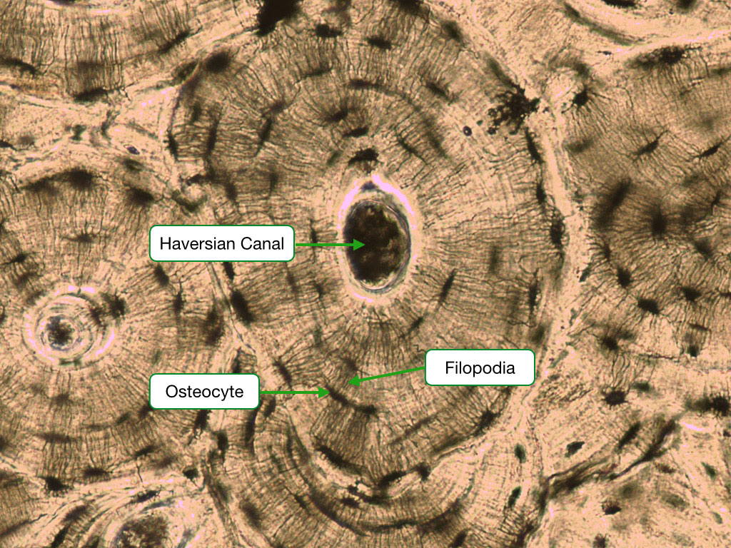 Ground section of Haverisan System showing osteocytes and their filopodia.