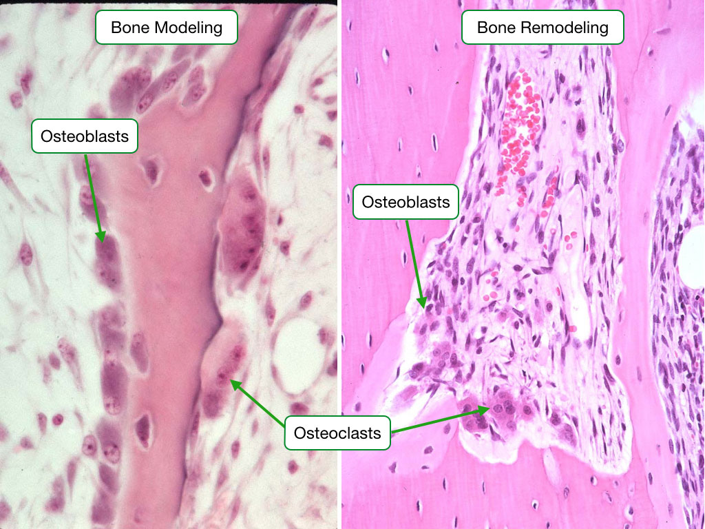 Bone Modeling and Remodeling