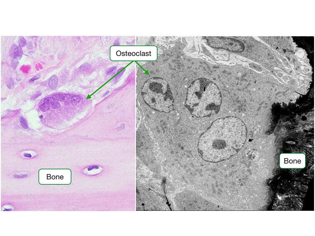 Histological image and electron micrograph showing an osteoclast
