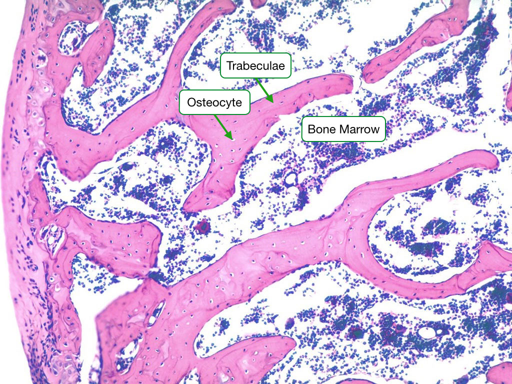 H and E stained sample showing trabecular bone with osteocytes.