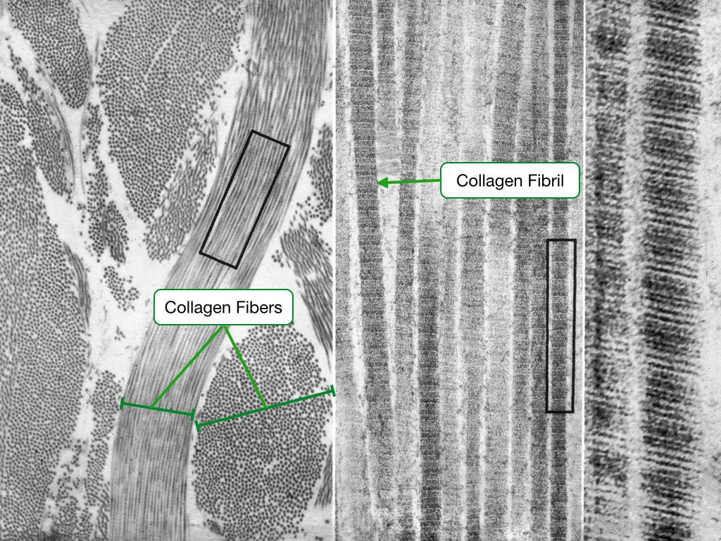 Electron micrograph showing collagen fibers.