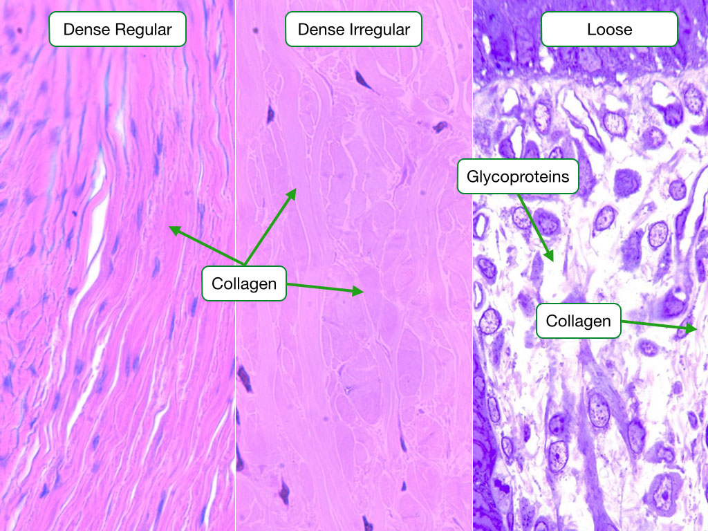 Histological images showing dense regular, dense irregular and loose connective tissues.