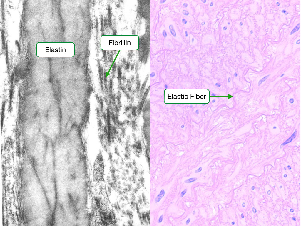 Electron micrograph and H and E stained sample showing elastic fibers.