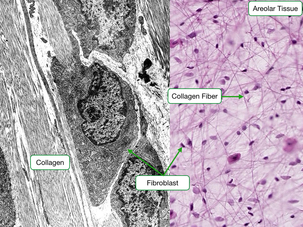Electron micrograph and H and E stained sample showing fibroblasts.