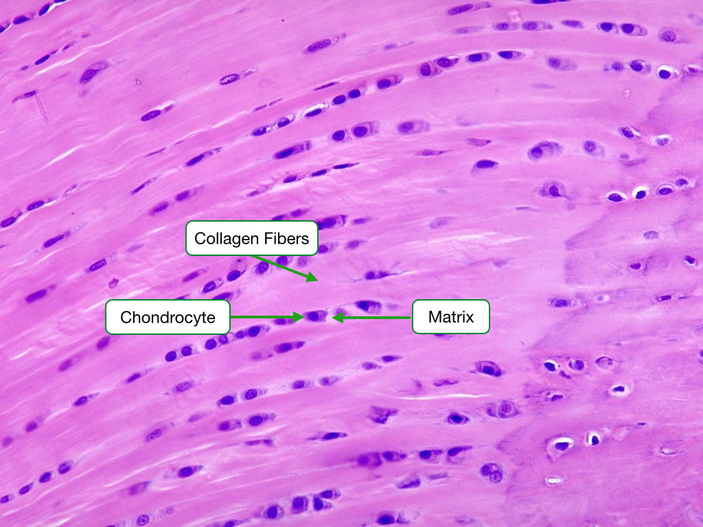 H and E stained sample showing fibrocartilage.