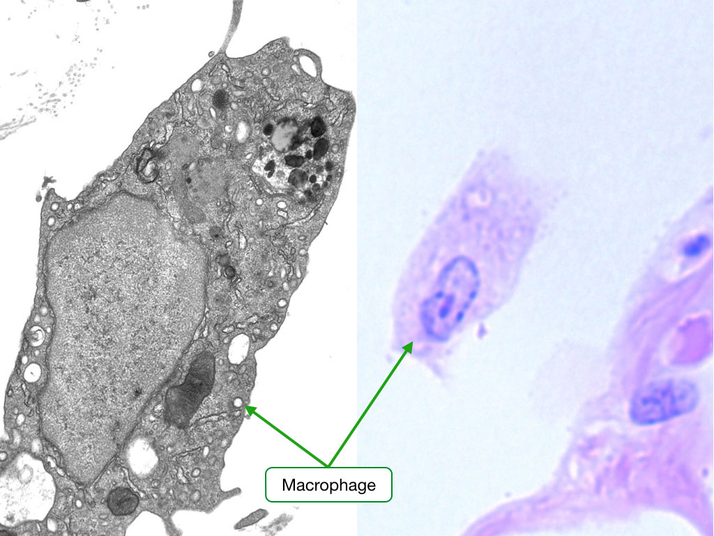 Electron micrograph and H and E stained sample showing macrophages.