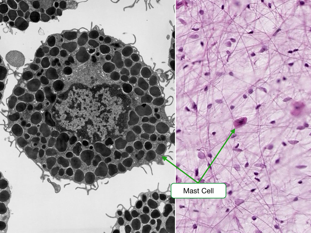 Electron micrograph and H and E stained sample showing mast cells.