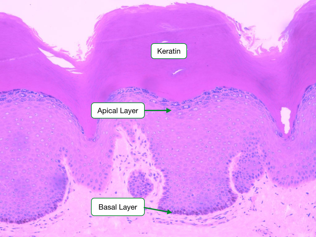 Stratified Squamous Epithelia with Keratin