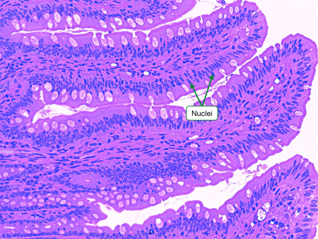 Image of tissue stained by H and E highlighting appearance of nuclei.