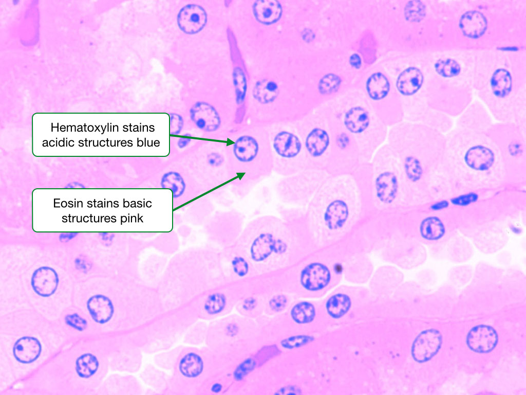 Image of a tissue stained by H and E highlighting the appearance of the nucleus and cytoplasm