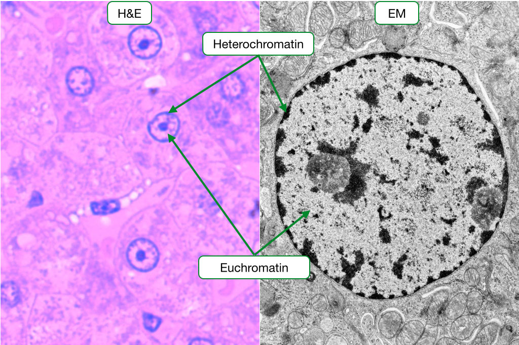 H and E stained sample and electron micrograph showing heterochromatin.