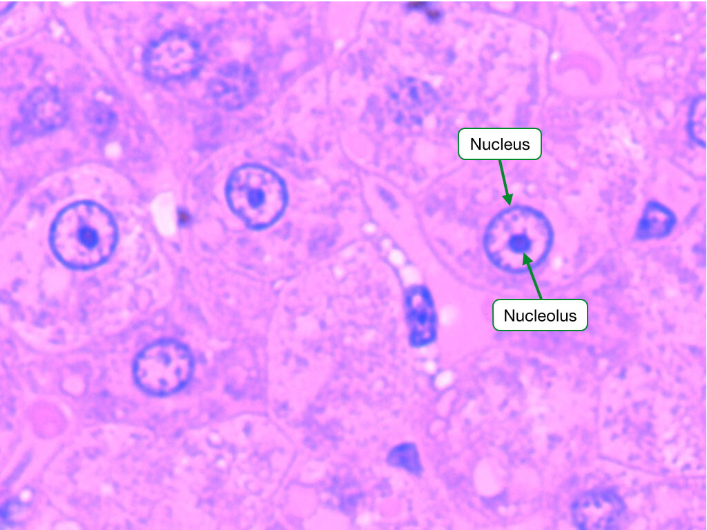 H and E stained sample showing a nucleus with a prominent nucleolus