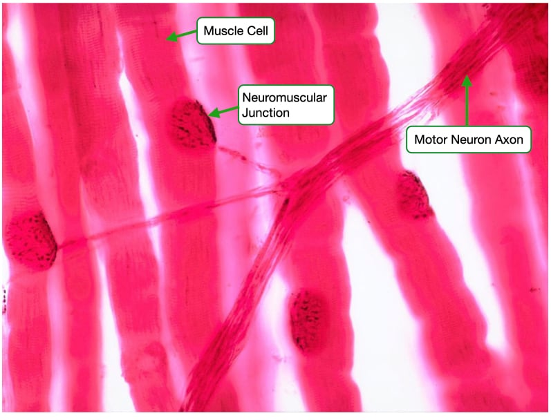 Image of motor neuron and skeletal muscle fibers showing neuromuscular junction.
