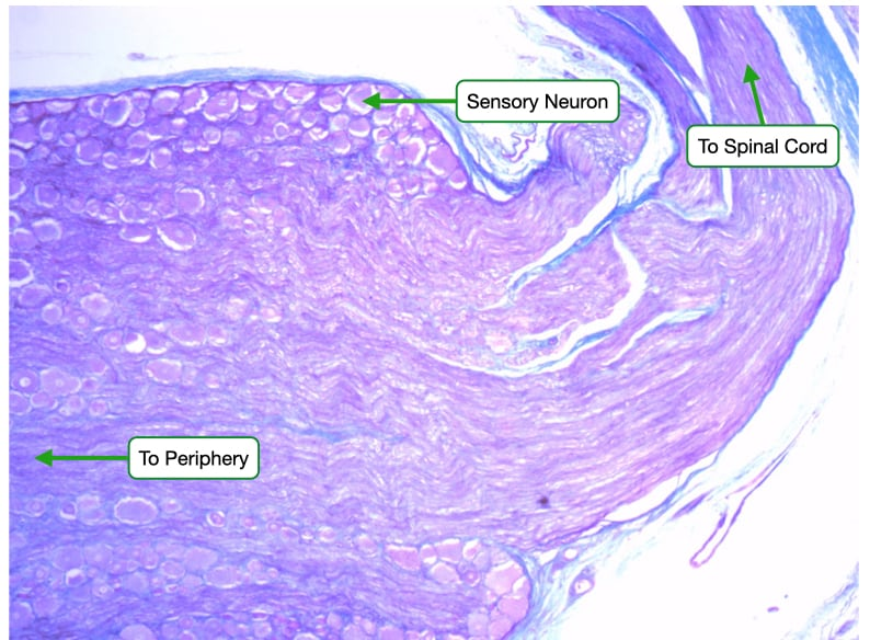 H and E stained sample of dorsal root ganglion.