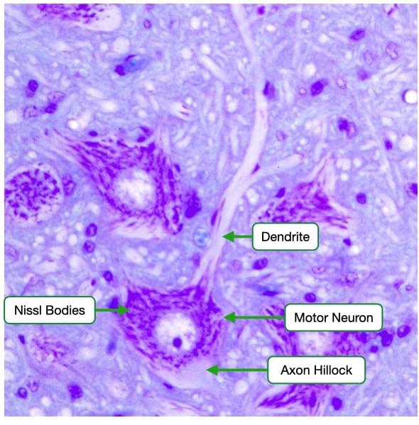Nissl stain of motor neuron