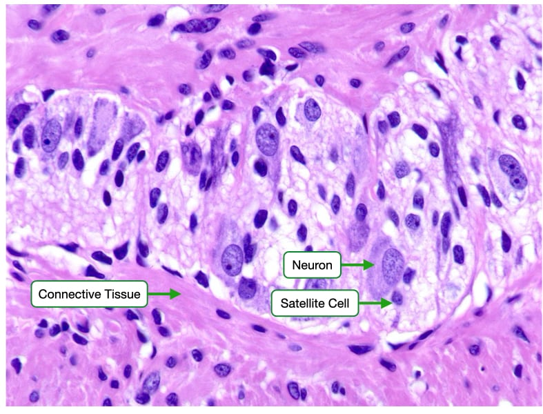 H and E stained sample of a peripheral nerve ganglion.