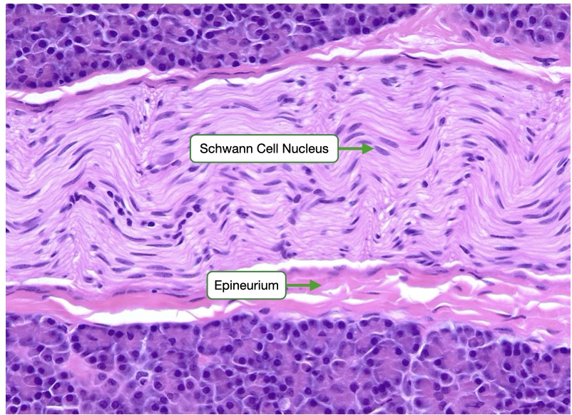 H and E stained sample of a peripheral nerve bundle seen in longitudinal section.