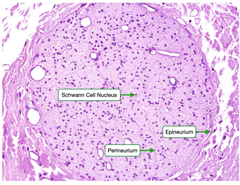 H and E stained sample of periphera nerve bundle that contains unmyelinated axons.