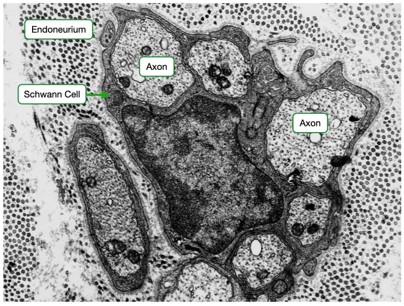 Electron micrograph of unmyelinated axons.