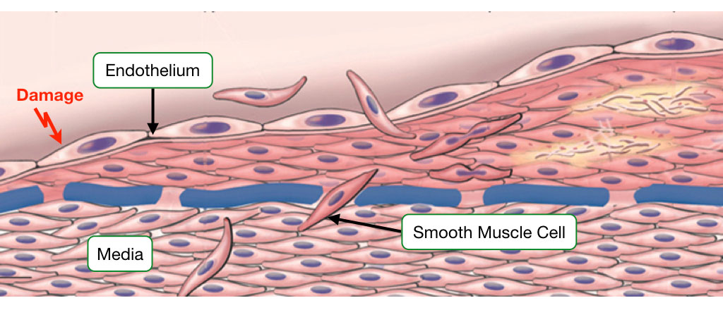 Diagram showing the role of smooth muscle cells in the repair of damage to endothelium.